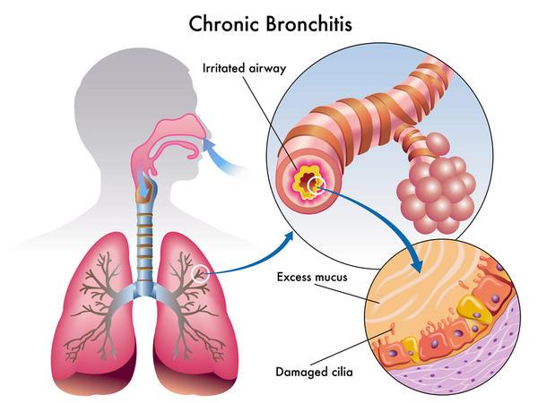 Bronchitis-mechanism