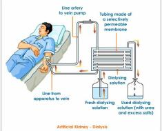 dialysis or artificial kidney