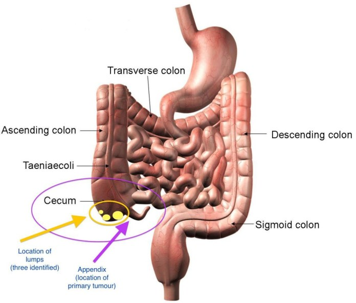 Location of Appendix in human body