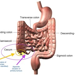 Where Are Your Appendix Located Diagram Labelled Of Water Cycle Herbal Treatment To Cure Appendicitis Ayurveda And Yoga