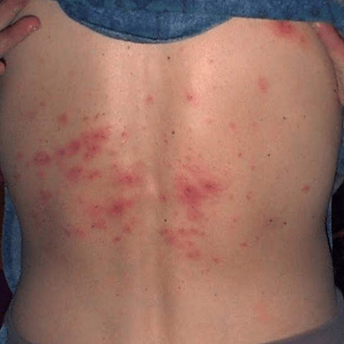 psoriasis itch relief