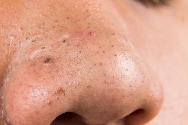 developing blackheads on nose
