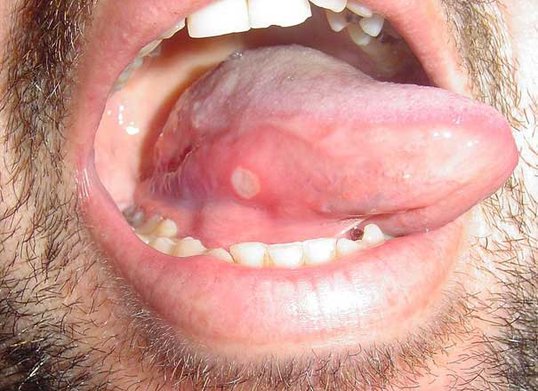 Aphthous ulcer on tongue