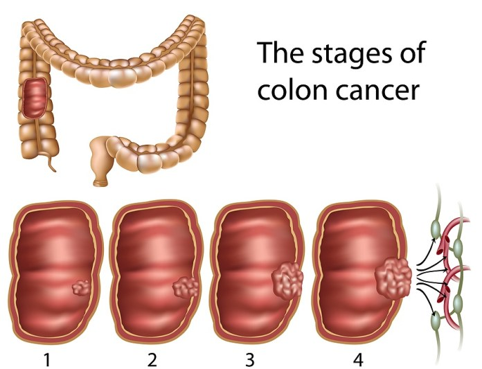 colon cancer stages