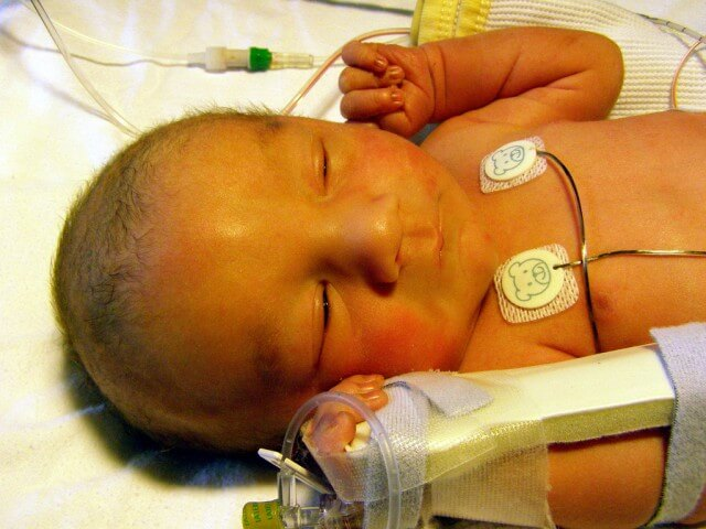 infant with neonatal jaundice