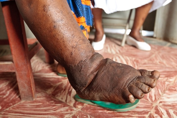 filaria affected feet