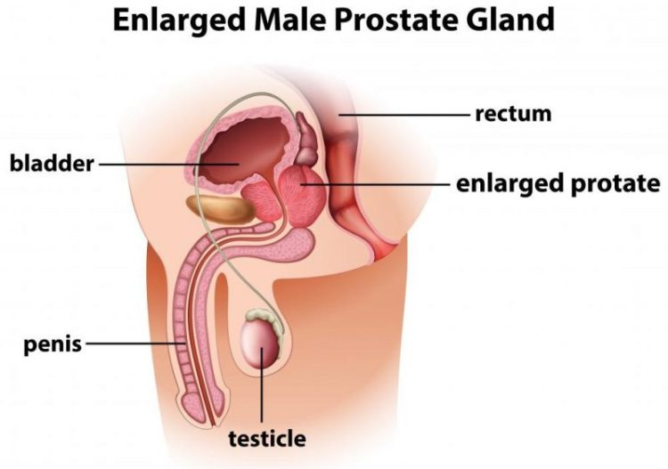 Natural remedies for prostate enlargement