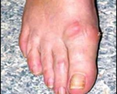 Hallux rigidus preventive measures