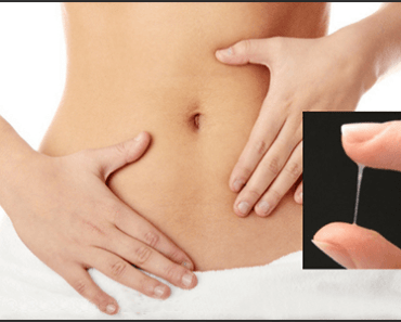 Top 7 Home remedies for Leucorrhoea