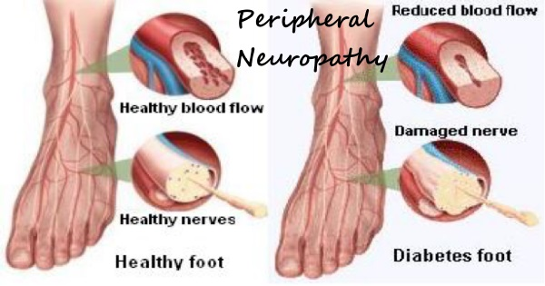 Herbs for Diabetic Neuropathy