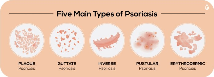 Types of Psoriasis
