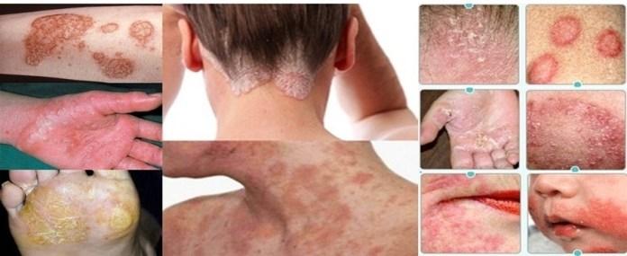 Eczema types