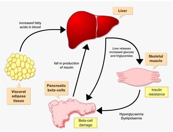 Causes of Type2 Diabetes