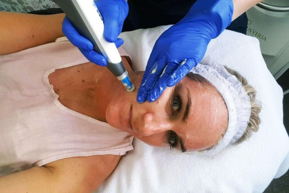 beauty-review-nz-dermapen-4-microneedling