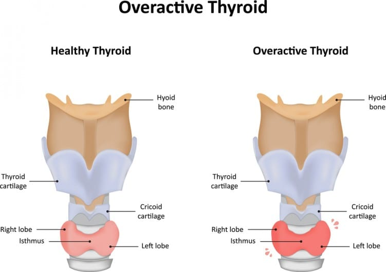 A Look At Hyperthyroidism (Overactive Thyroid)  The Best