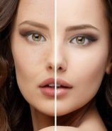 XYZ Smart Collagen Before and After