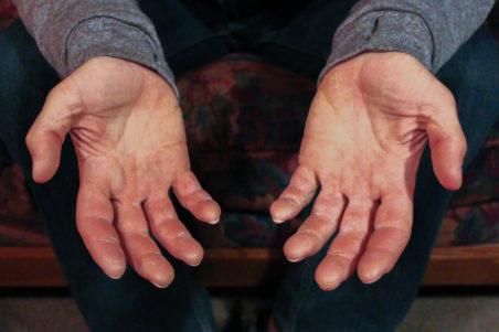rock climber finger tendons