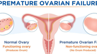 Primary Ovarian Insufficiency