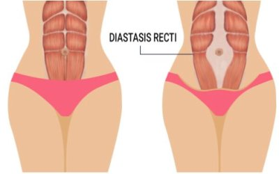 Looking after your core in pregnancy – Diastasis Recti with Nicky Ryder