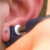 Earlobe Piercing with a Gun