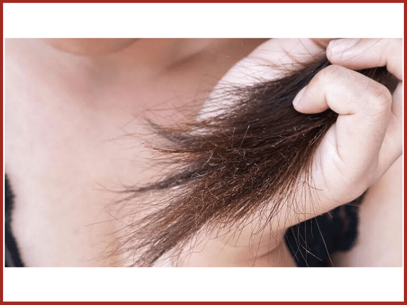 Say NO To Split Ends With Dandruff