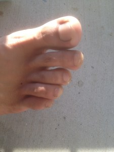 Right foot blisters