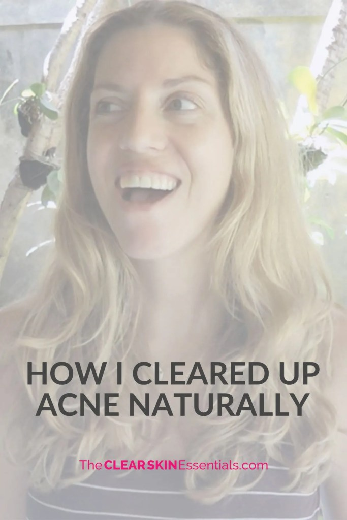 Here's my story how I cleared up adult acne naturally through changes in my diet, lifestyle, and skin care routine.