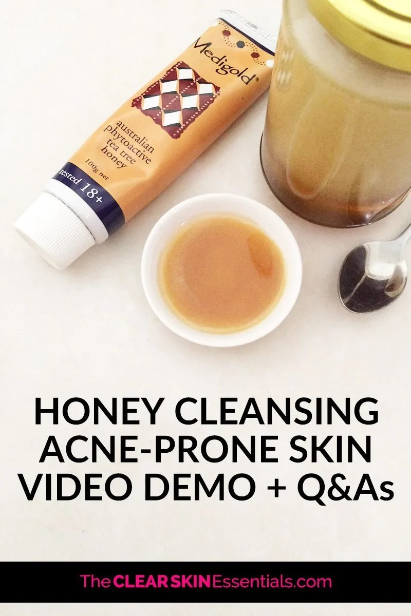 Honey is the best treatment cleanser for acne and breakout prone skin. Packed with skin beautifying nutrients, active enzymes for gentle exfoliation, and protective antibacterial compounds - honey is nature's gift for clear skin. I don't think there's a gentler cleanser available, and when you have breakouts and acne, you need to be using products that are going to sooth and calm your irritated skin. Click through to watch the video demo on how to wash your face with honey, plus answers to all your questions about honey cleansing acne prone skin. | www.TheClearSkinEssentials.com