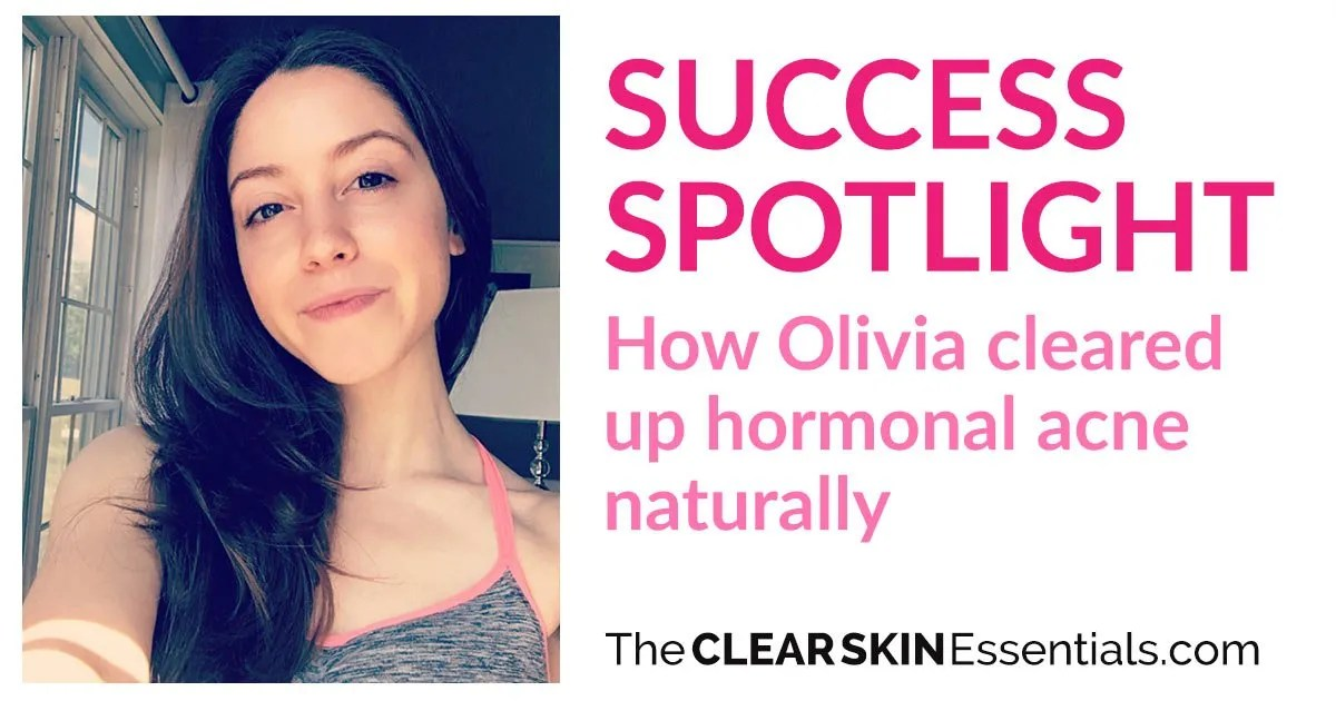 Success Spotlight Meet Olivia How She Cleared Up Hormonal Acne
