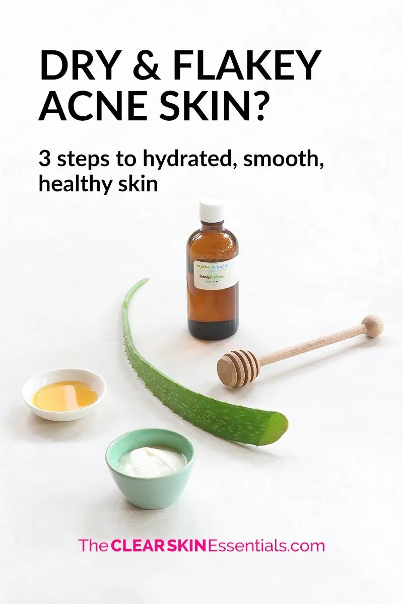 Got dry flakey acne skin? When your skin is that dry, cracked, peeling, and flaking, it can feel sore and raw, and very hard for breakouts to heal. In fact, it can cause even more pimples and scars, which is the worst. Here's 3 simple steps to getting your skin balanced, hydrated, smooth and healthy again.