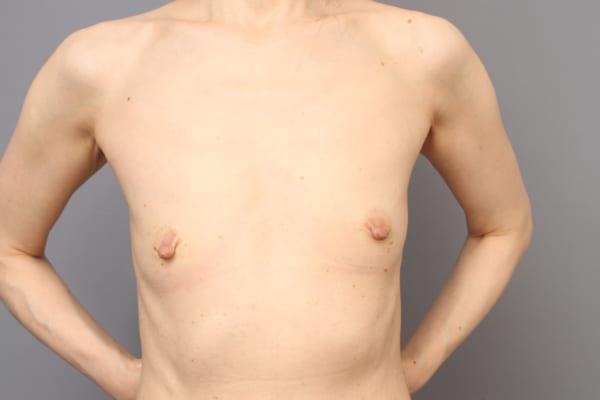「BMI 18.7、50代女性」の『コンデンスリッチ豊胸』&『乳頭縮小術』