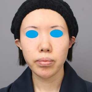 「BMI 21、30代女性」の『頬コケ改善(他院修正)』