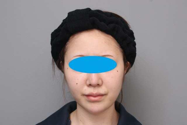 『おでこを丸く(CRF注入)』、20代女性のエイジング治療