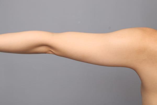 「BMI 19.1、20代女性」の『二の腕・肩ベイザー脂肪吸引』