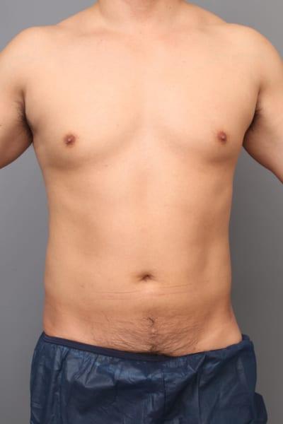 「BMI 25.3、30代男性」の『ベイザー脂肪吸引(上・下腹部)』