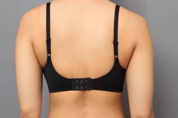 「BMI 21.7、20代女性」の『二の腕・肩ベイザー脂肪吸引』