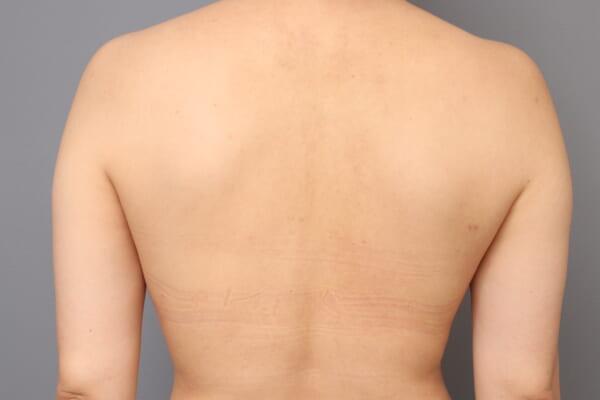 「BMI 20.8、40代女性」の『二の腕・肩のベイザー脂肪吸引』&『二の腕レヌビオン』