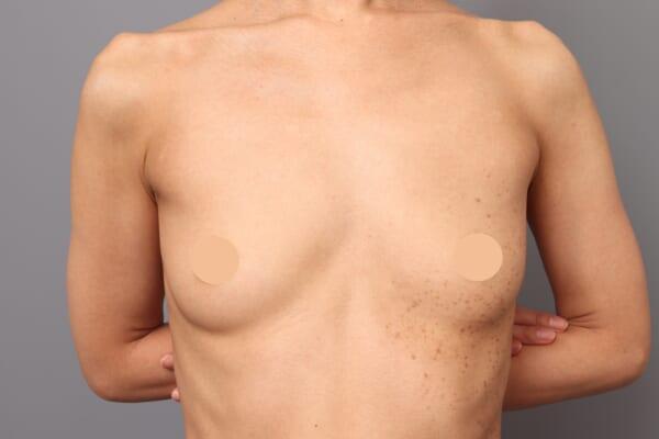 「BMI 19.1、40代女性」の『コンデンスリッチ豊胸』