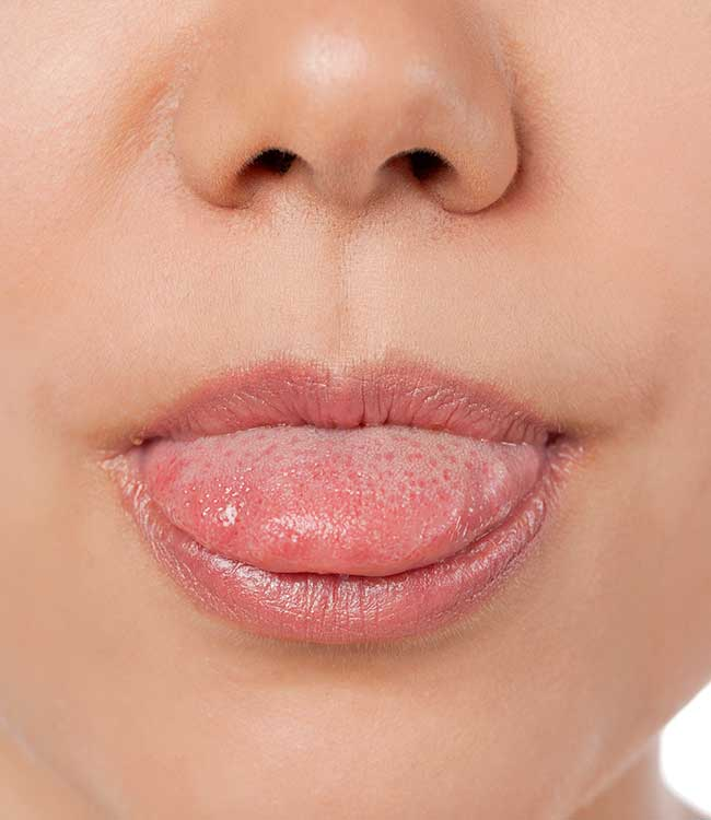 Tongue Thrust Symptoms