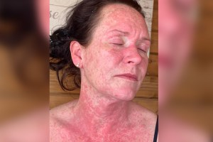 Woman suffers agonizing rash after Oxford-AstraZeneca COVID vaccine