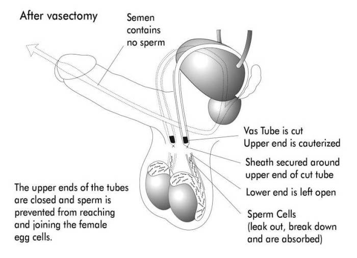 How long sperm test vasectomy, free adult porn credit card