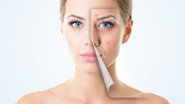 acne free 3 days