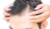 male-pattern-baldness-treatment