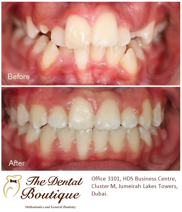 Smile Gallery  The Dental Boutique