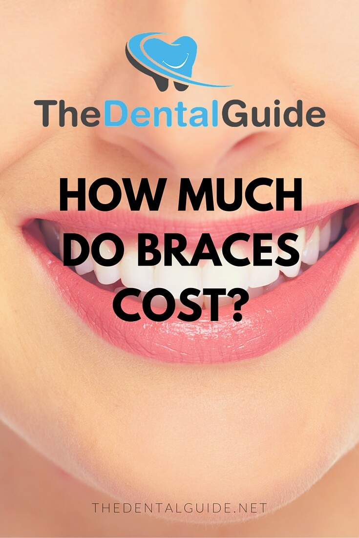 How Much Do Braces Cost in the UK  The Dental Guide