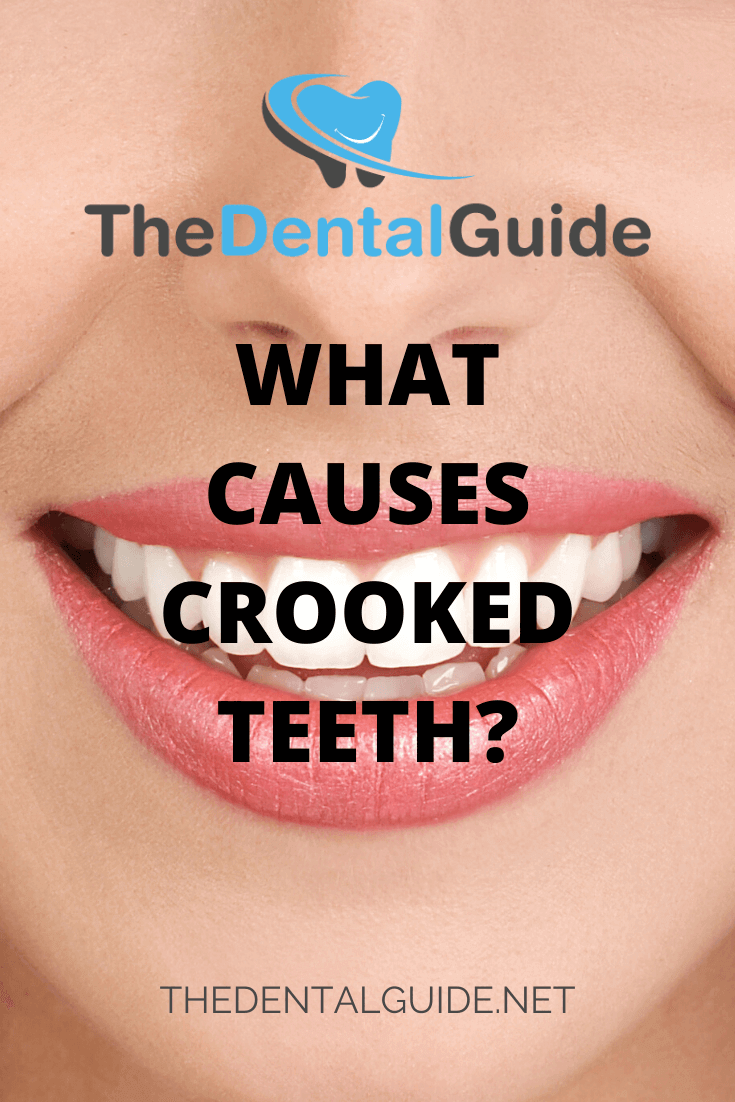 What Causes Crooked Teeth? - The Dental Guide UK