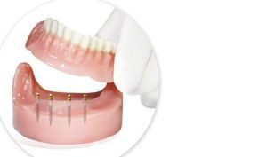 Mini Implants with Denture