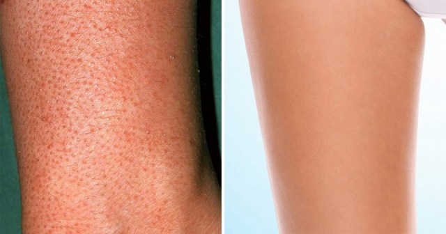 how to get rid of strawberry legs naturally at home