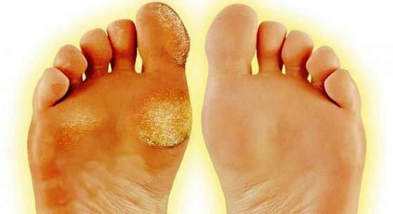Diy Callous Remover That Works Like Magic