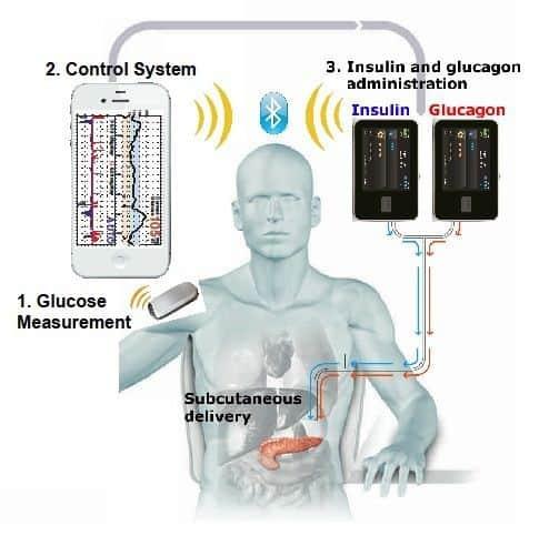Artificial Pancreas diabetes